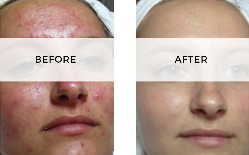acne-treat