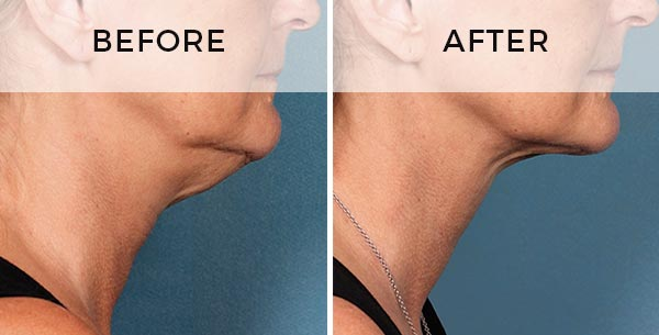 double chin prostrolane