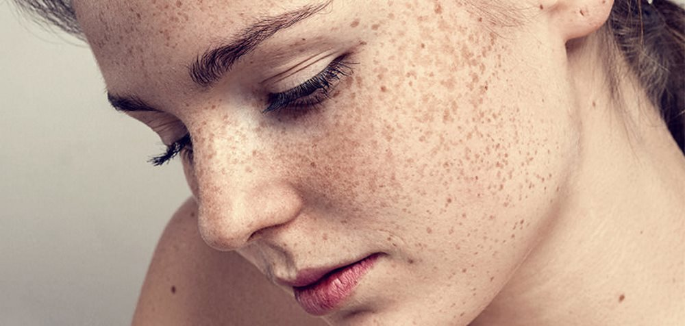 freckle-removal