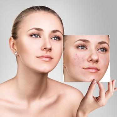 problematic-skin
