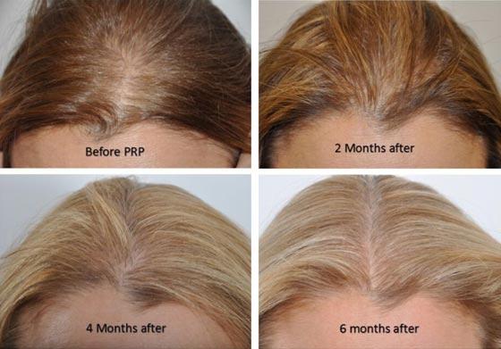 scalp-plasma-injections